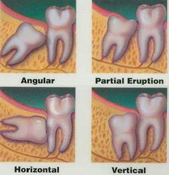практика, врач, зубы, стоматология, совет, лечение, диагноз