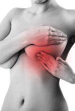 мастит, воспаление молочной железы, причины мастита, воспаление груди